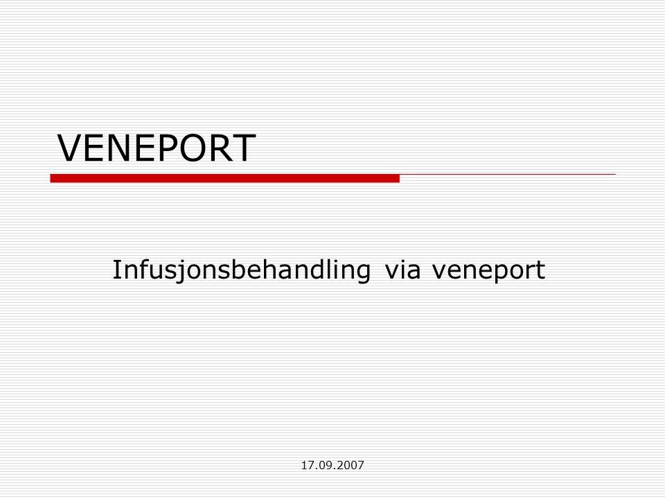 17.09.2007 VENEPORT Infusjonsbehandling via veneport
