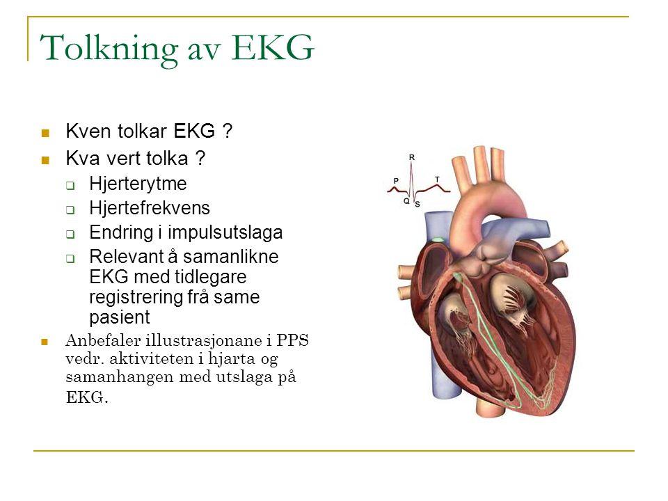 Tolkning av EKG Kven tolkar EKG ? Kva vert tolka ?  Hjerterytme  Hjertefrekvens  Endring i impulsutslaga  Relevant å samanlikne EKG med tidlegare