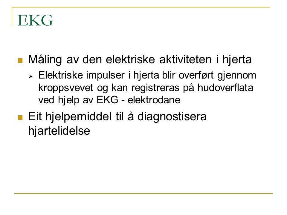 Ulike registreringsformer Vanlig EKG med papirutskrift 24 t.