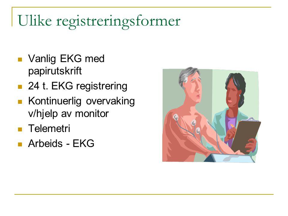 Ulike registreringsformer Vanlig EKG med papirutskrift 24 t. EKG registrering Kontinuerlig overvaking v/hjelp av monitor Telemetri Arbeids - EKG