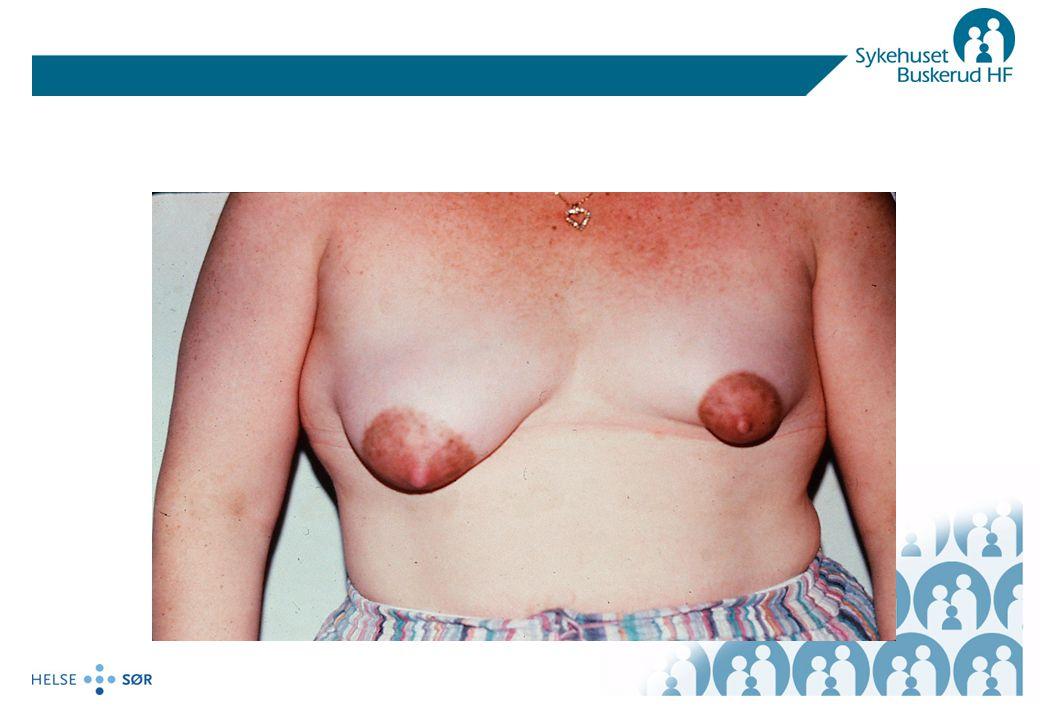 Brystbetennelse Disponerende faktorer –Melkestase –Såre brystknopper- obs roten til alt ondt.