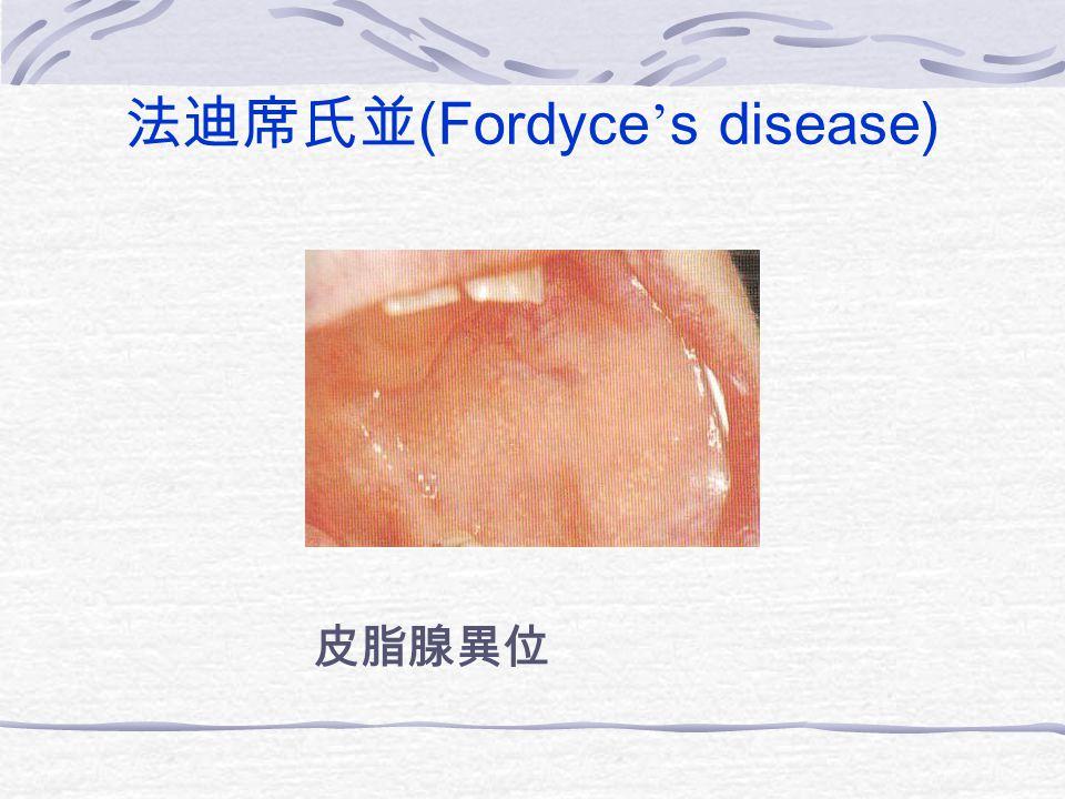 法迪席氏並 (Fordyce ' s disease) 皮脂腺異位