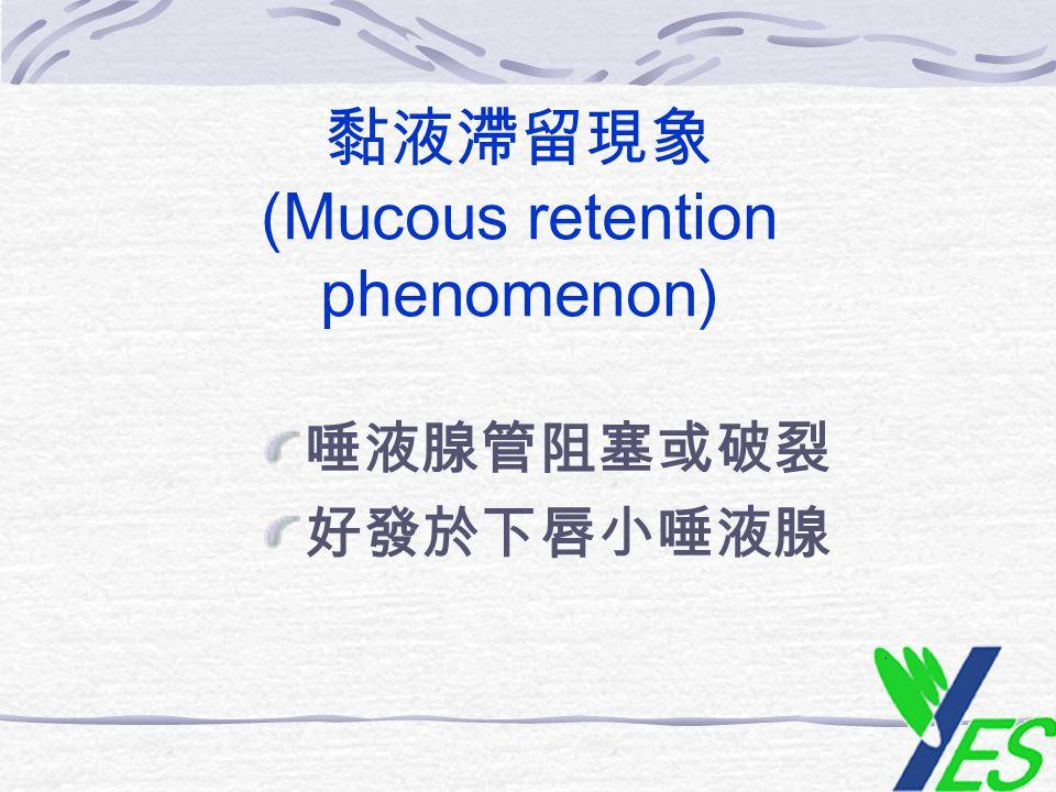黏液滯留現象 (Mucous retention phenomenon) 唾液腺管阻塞或破裂 好發於下唇小唾液腺