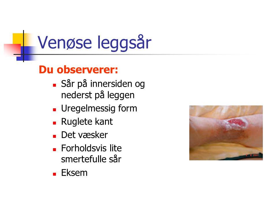 Venøse leggsår Du observerer: Sår på innersiden og nederst på leggen Uregelmessig form Ruglete kant Det væsker Forholdsvis lite smertefulle sår Eksem