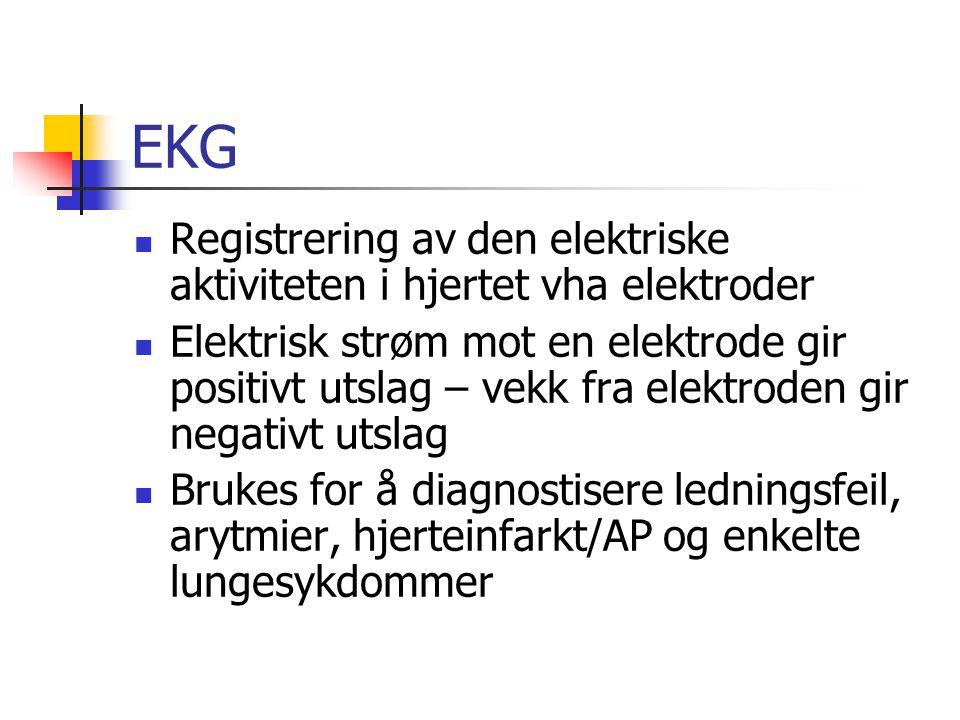 EKG Registrering av den elektriske aktiviteten i hjertet vha elektroder Elektrisk strøm mot en elektrode gir positivt utslag – vekk fra elektroden gir