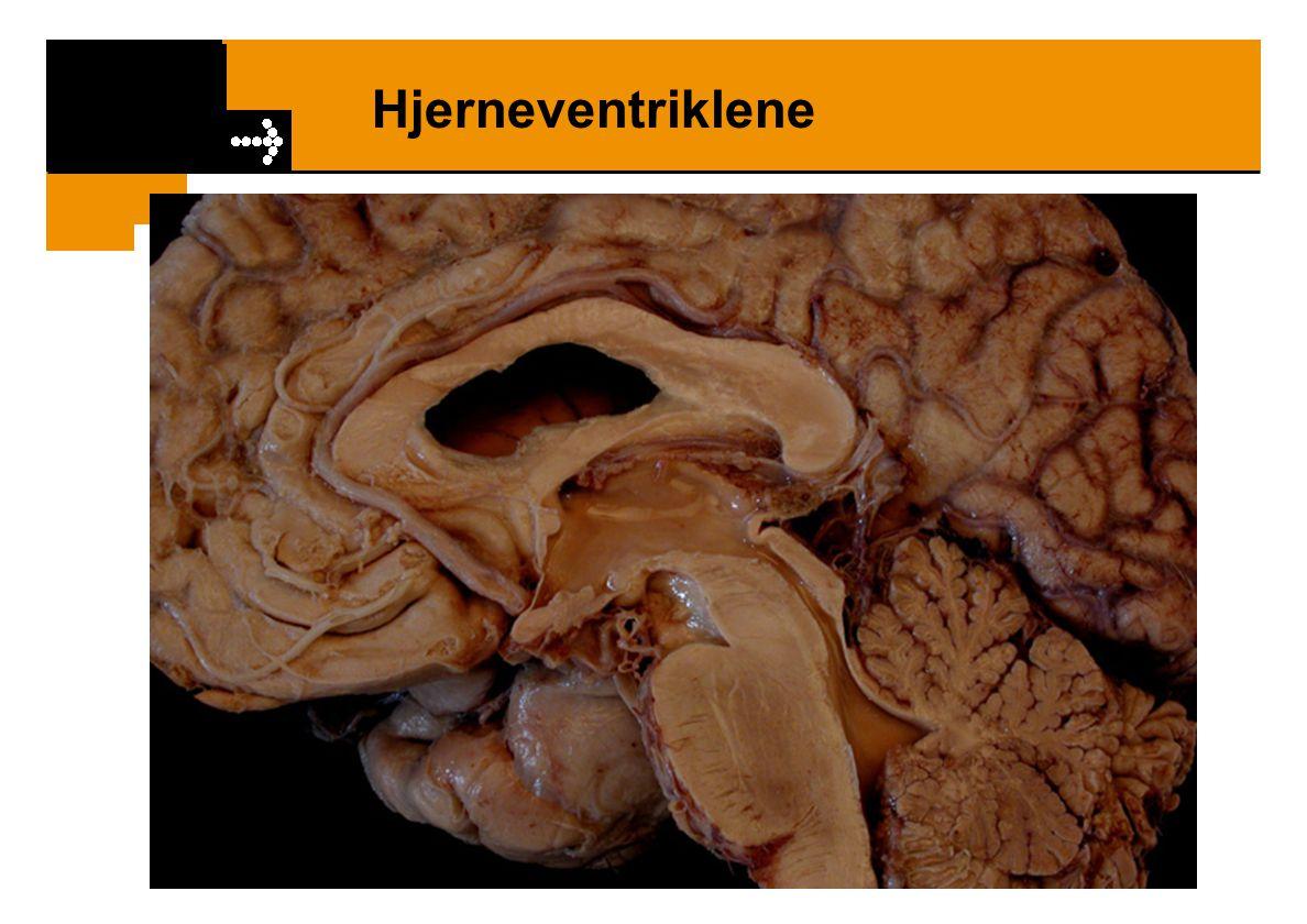 Hjernens overflate / Hovedstrukturer