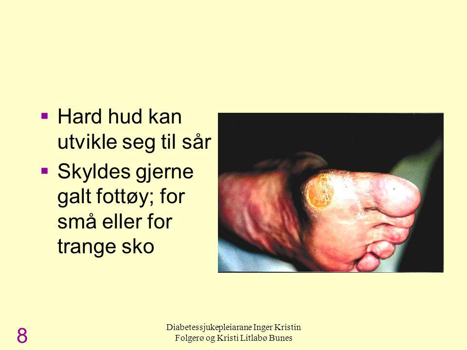 Diabetessjukepleiarane Inger Kristin Folgerø og Kristi Litlabø Bunes Hard hud under foten  Hard hud kan utvikle seg til sår  Skyldes gjerne galt fot