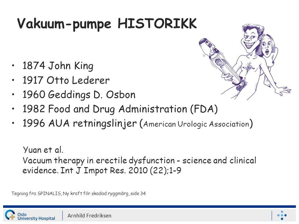 Vakuum-pumpe HISTORIKK 1874 John King 1917 Otto Lederer 1960 Geddings D.