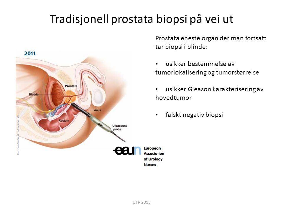 Tradisjonell prostata biopsi på vei ut Prostata eneste organ der man fortsatt tar biopsi i blinde: usikker bestemmelse av tumorlokalisering og tumorst