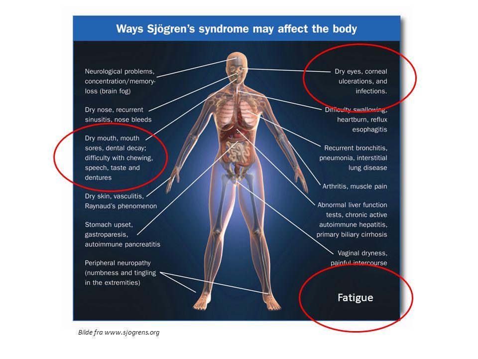 Bilde fra www.sjogrens.org Fatigue