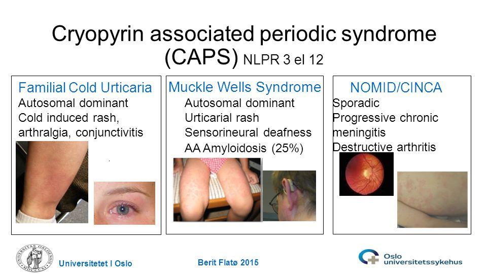 NOMID/CINCA Sporadic Progressive chronic meningitis Destructive arthritis Muckle Wells Syndrome Autosomal dominant Urticarial rash Sensorineural deafn