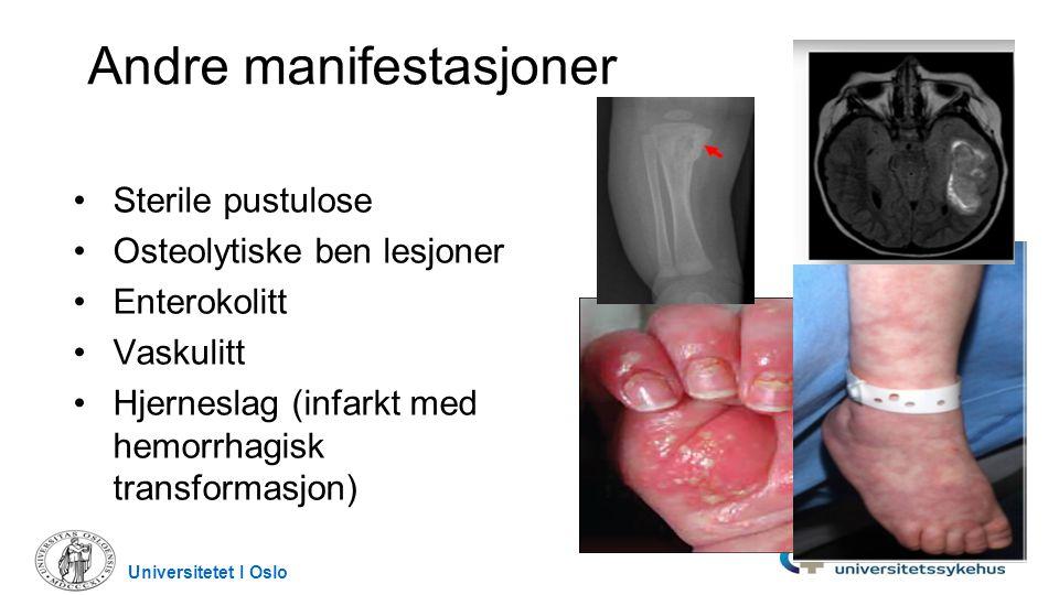 Andre manifestasjoner Sterile pustulose Osteolytiske ben lesjoner Enterokolitt Vaskulitt Hjerneslag (infarkt med hemorrhagisk transformasjon) Universi