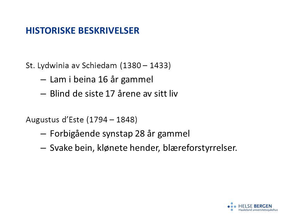 HISTORISKE BESKRIVELSER St. Lydwinia av Schiedam (1380 – 1433) – Lam i beina 16 år gammel – Blind de siste 17 årene av sitt liv Augustus d'Este (1794
