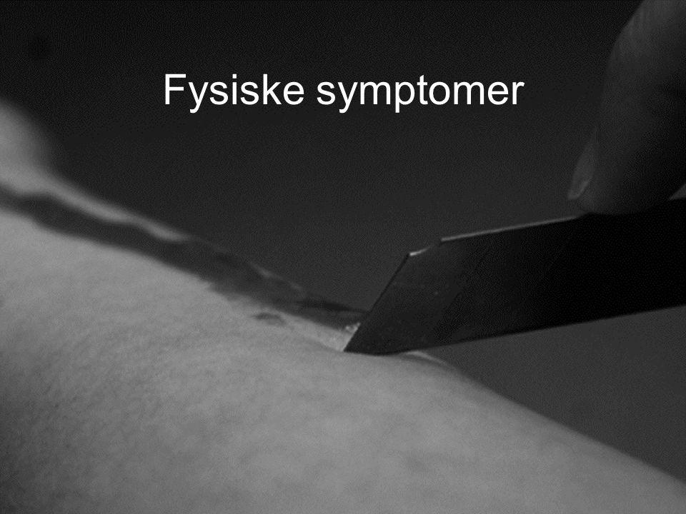 Fysiske symptomer