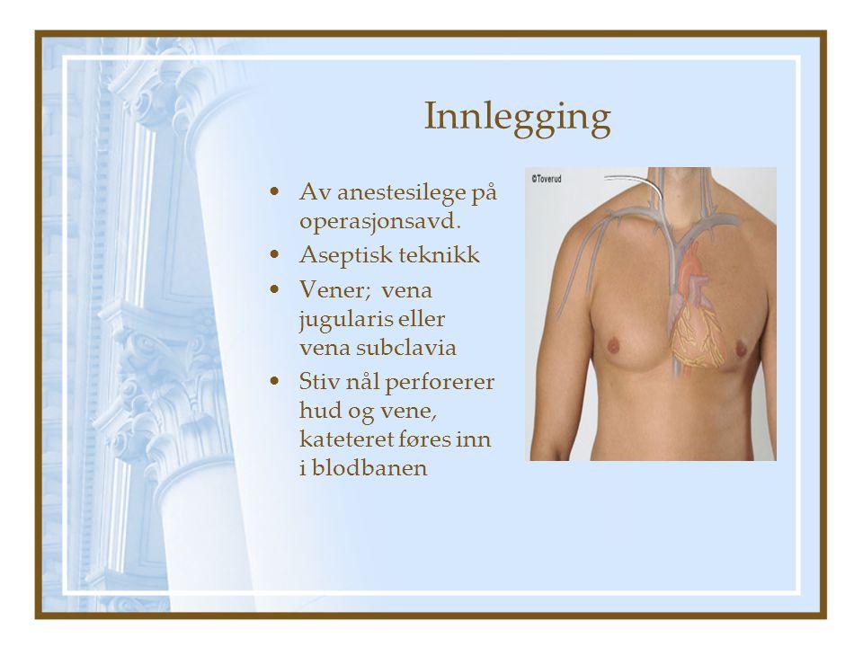 Innlegging Av anestesilege på operasjonsavd.