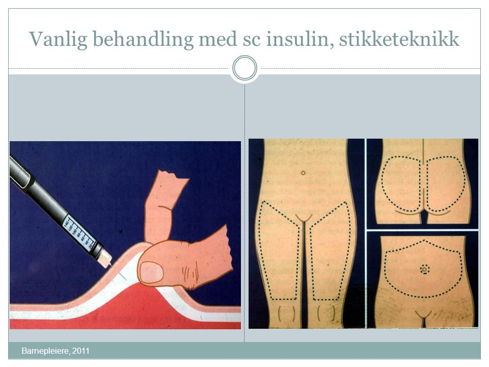 Vanlig behandling med sc insulin, stikketeknikk Barnepleiere, 2011