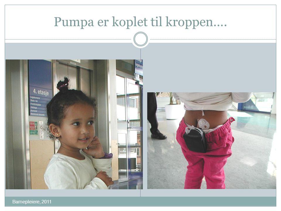 Pumpa er koplet til kroppen…. Barnepleiere, 2011