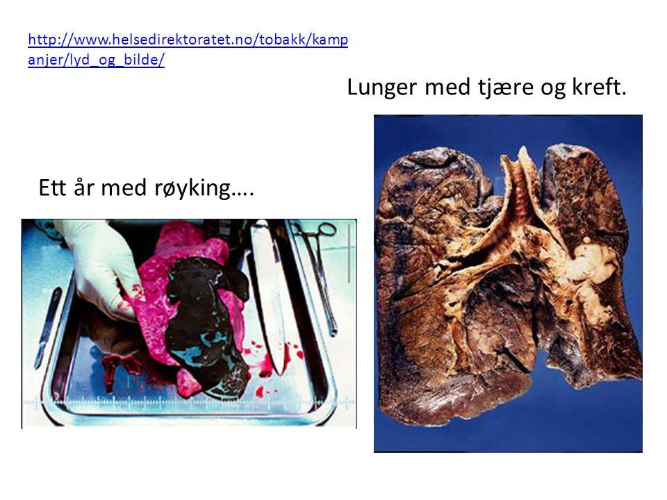 Lunger med tjære og kreft. Ett år med røyking…. http://www.helsedirektoratet.no/tobakk/kamp anjer/lyd_og_bilde/