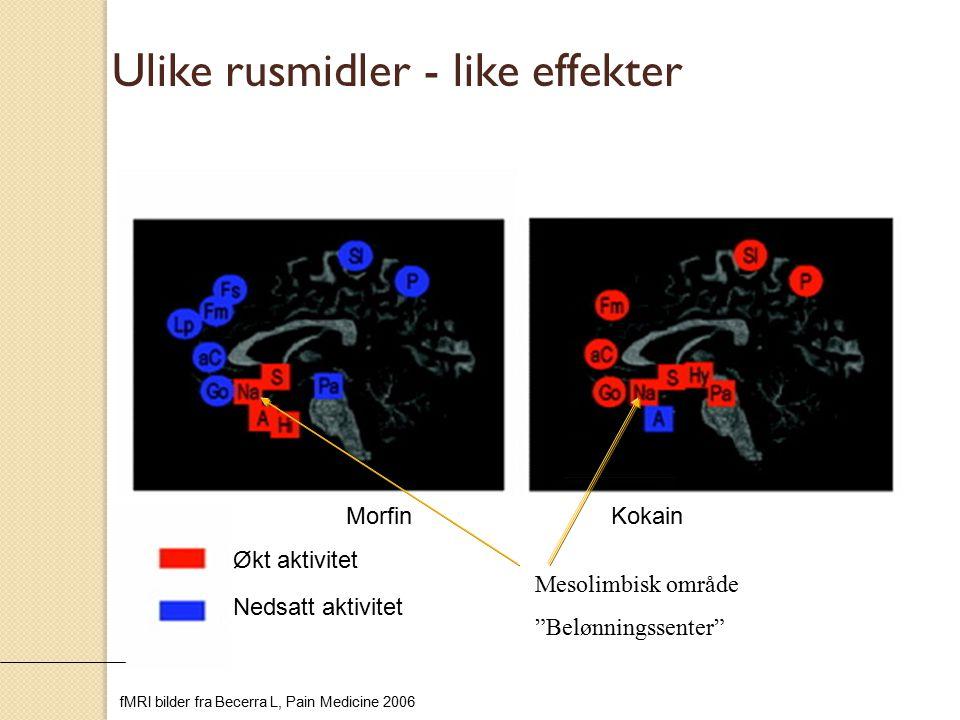 """MorfinKokain Ulike rusmidler - like effekter Økt aktivitet Nedsatt aktivitet fMRI bilder fra Becerra L, Pain Medicine 2006 Mesolimbisk område """"Belønni"""