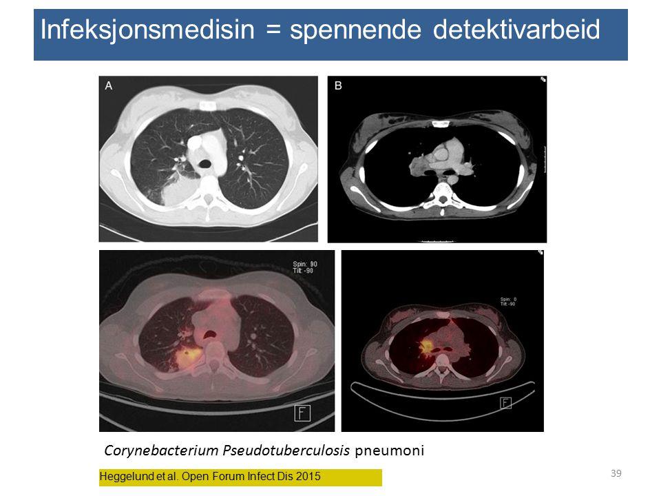 Heggelund et al. Open Forum Infect Dis 2015 Infeksjonsmedisin = spennende detektivarbeid Corynebacterium Pseudotuberculosis pneumoni 39