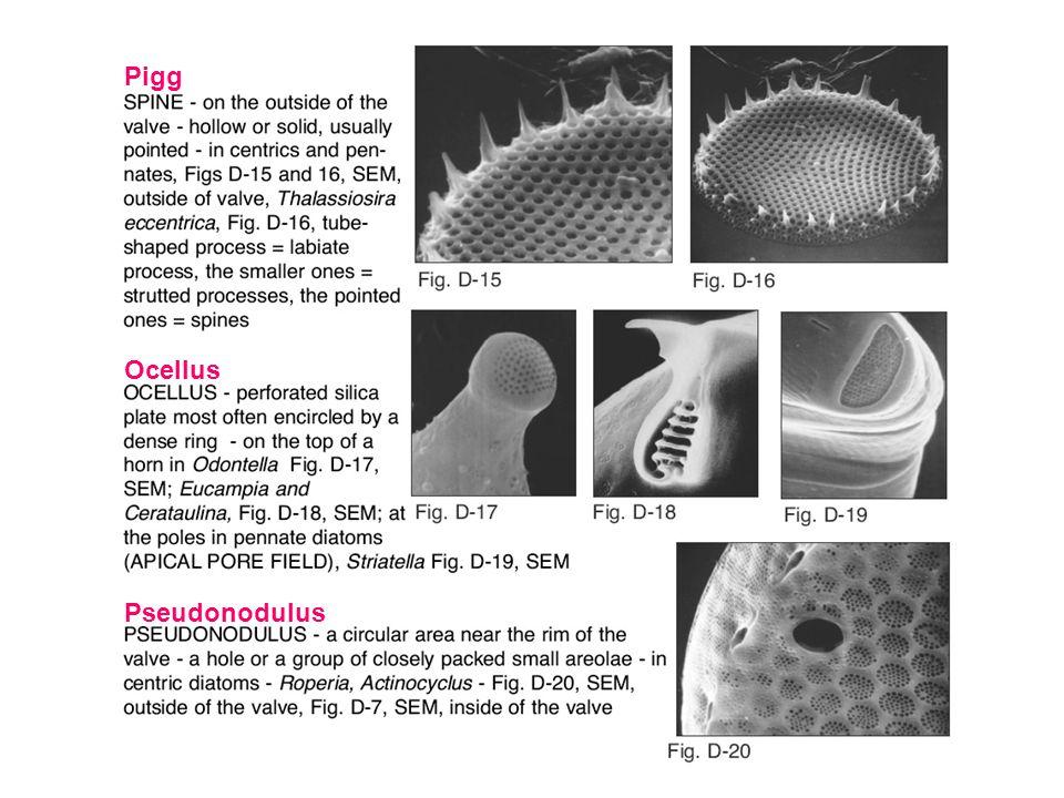 Norsk kystplanktonflora – English edition Pigg Ocellus Pseudonodulus