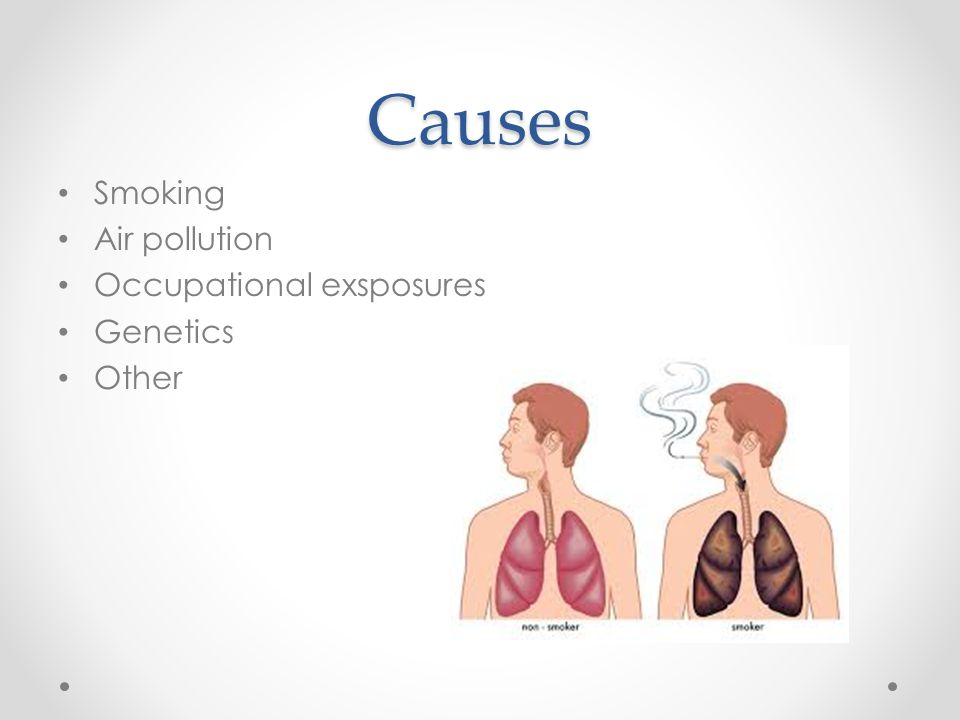 Causes Smoking Air pollution Occupational exsposures Genetics Other