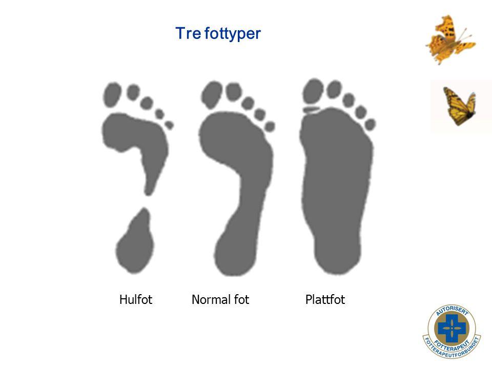 Barnefoten - kjennetegn Barnefotens kjennetegn: Lav lengdebue Fettputen på innsiden av lengdebuen Plattfot normalt fram til 4-5 år.