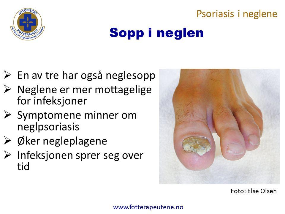 www.fotterapeutene.no Sopp i neglen  En av tre har også neglesopp  Neglene er mer mottagelige for infeksjoner  Symptomene minner om neglpsoriasis 