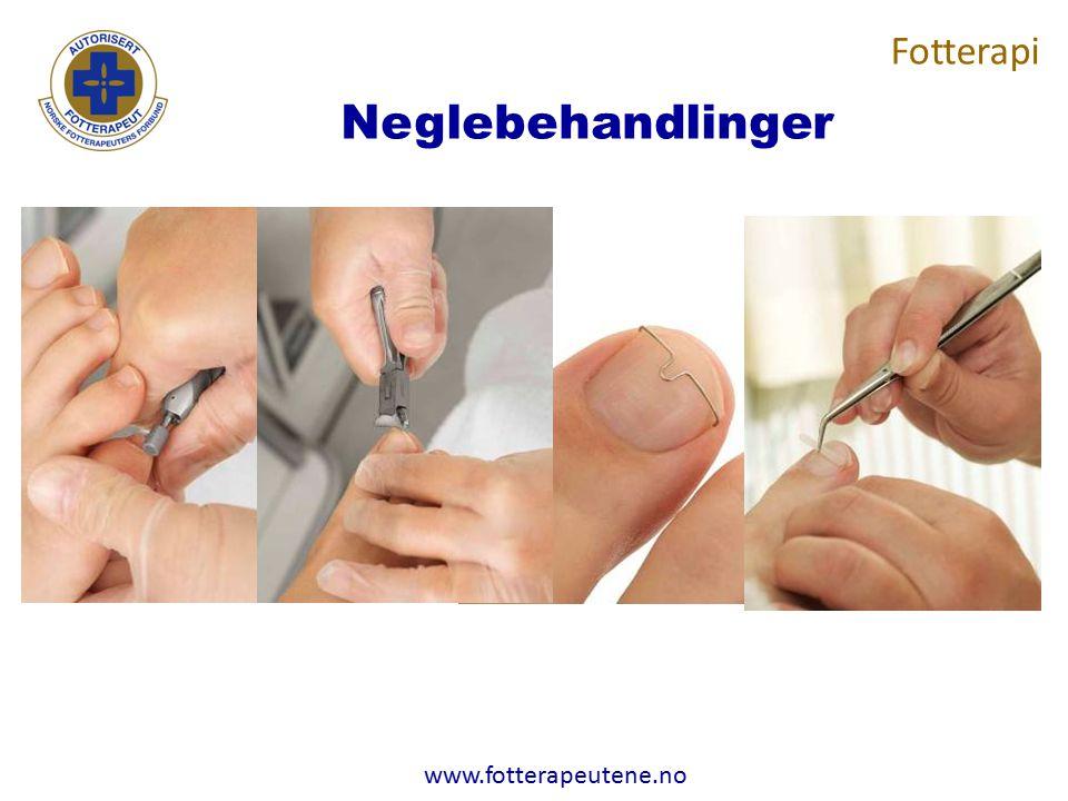 www.fotterapeutene.no Neglebehandlinger Fotterapi