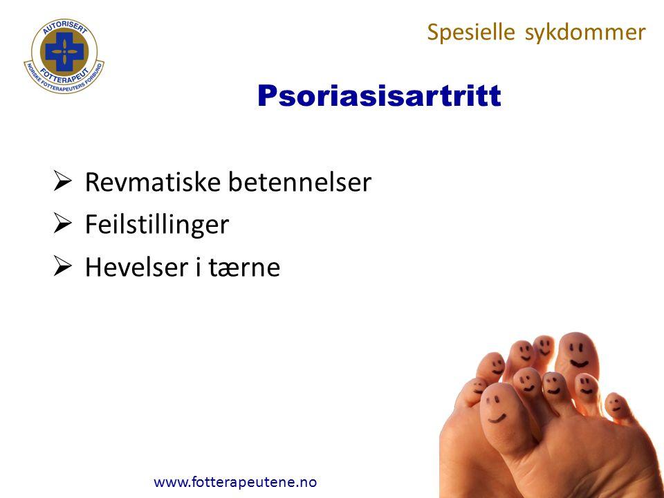 www.fotterapeutene.no Psoriasisartritt  Revmatiske betennelser  Feilstillinger  Hevelser i tærne Spesielle sykdommer