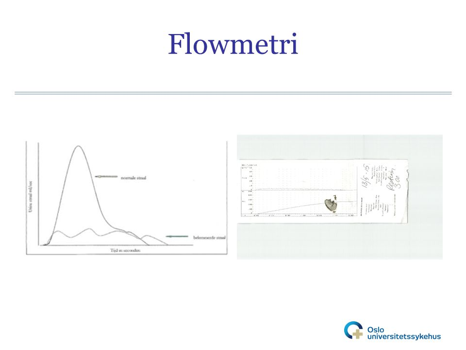Flowmetri