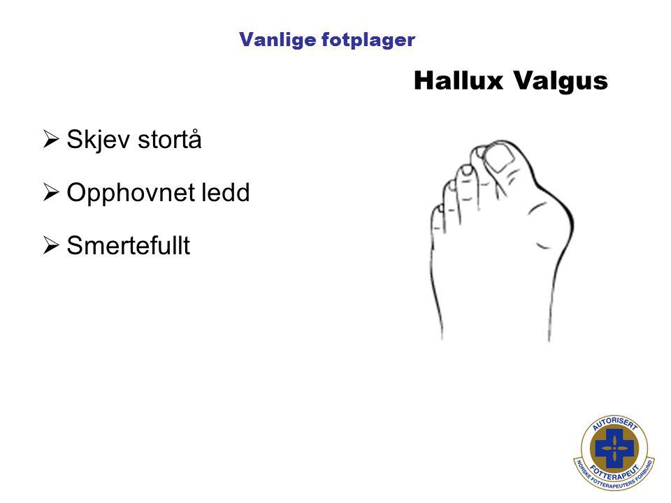 Vanlige fotplager Hallux Valgus  Skjev stortå  Opphovnet ledd  Smertefullt