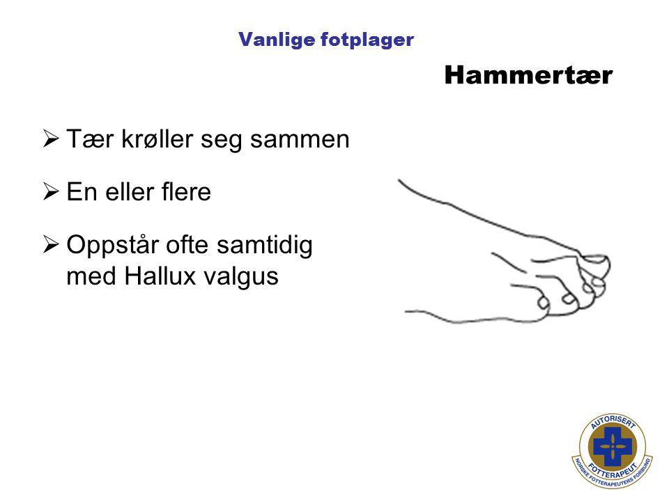 Vanlige fotplager Hammertær  Tær krøller seg sammen  En eller flere  Oppstår ofte samtidig med Hallux valgus