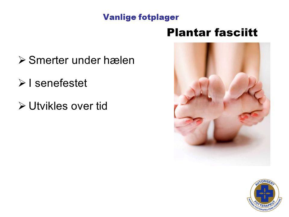 Vanlige fotplager Plantar fasciitt  Smerter under hælen  I senefestet  Utvikles over tid