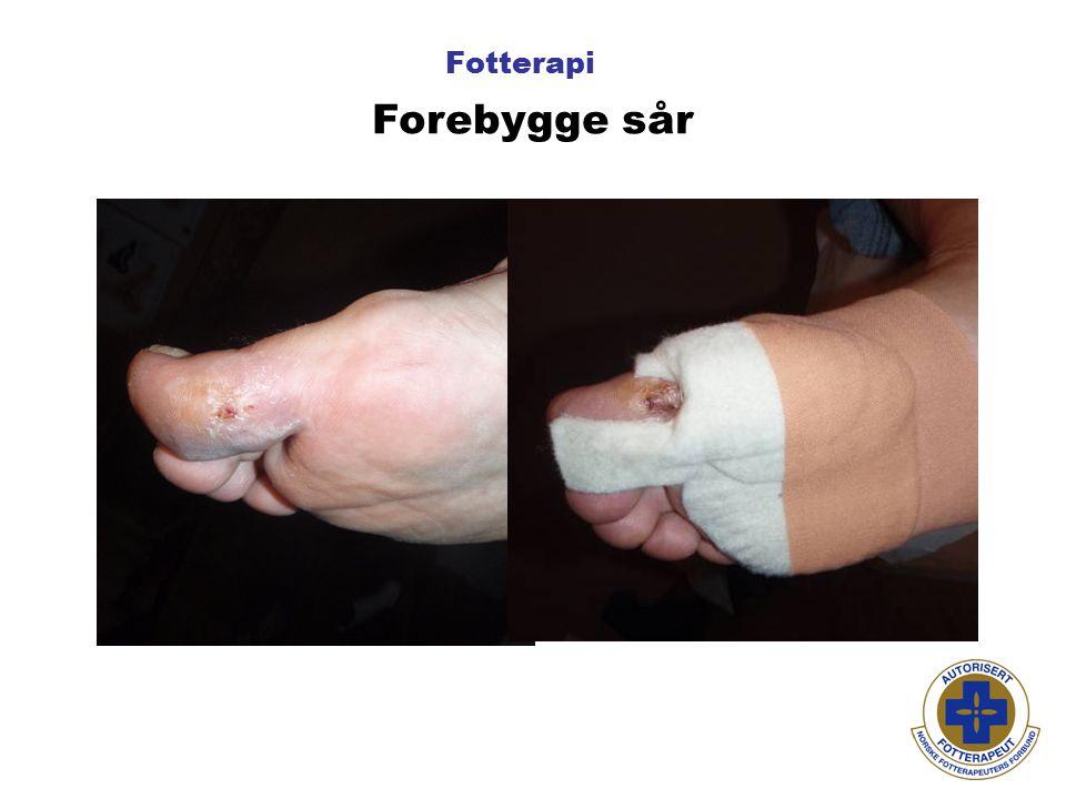 Fotterapi Forebygge sår