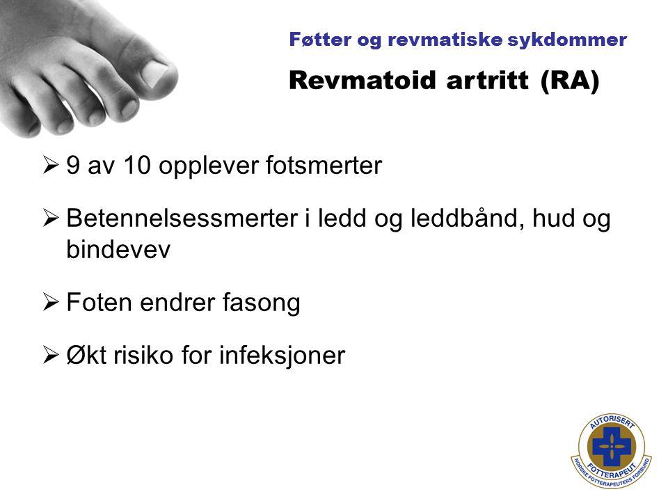 Føtter og revmatiske sykdommer  9 av 10 opplever fotsmerter  Betennelsessmerter i ledd og leddbånd, hud og bindevev  Foten endrer fasong  Økt risiko for infeksjoner Revmatoid artritt (RA)