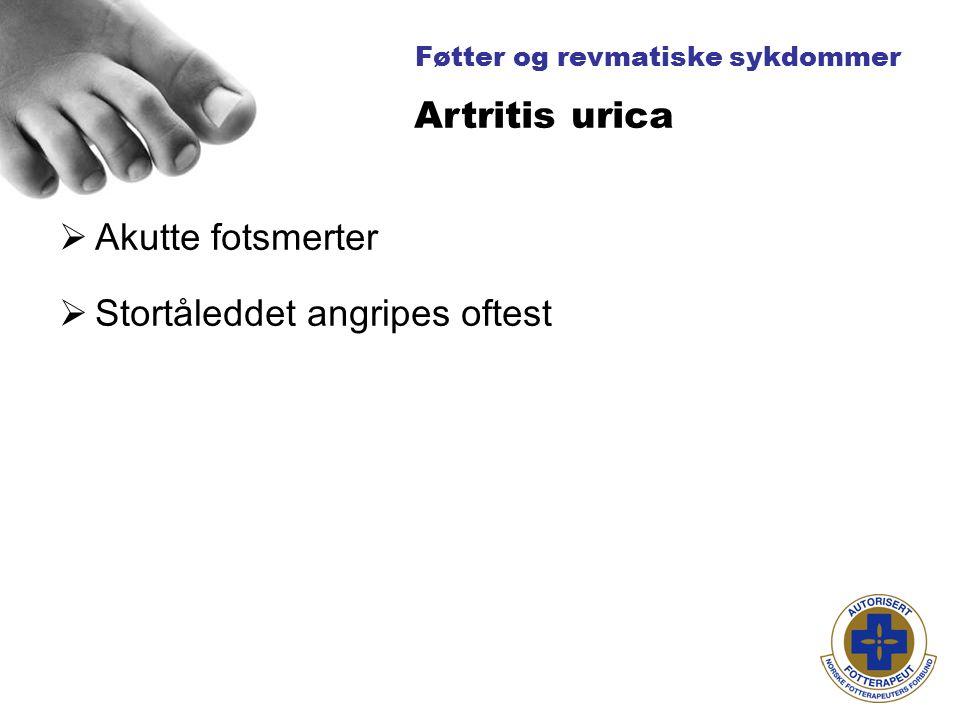Føtter og revmatiske sykdommer  Akutte fotsmerter  Stortåleddet angripes oftest Artritis urica