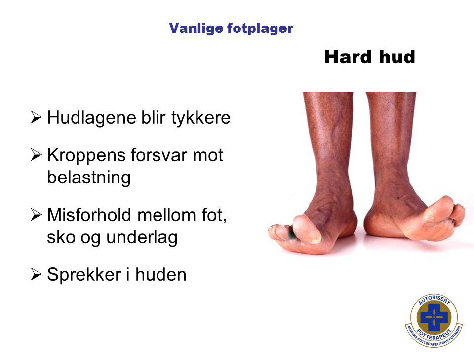 Vanlige fotplager  Hudlagene blir tykkere  Kroppens forsvar mot belastning  Misforhold mellom fot, sko og underlag  Sprekker i huden Hard hud