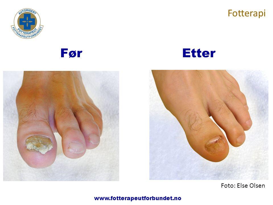www.fotterapeutene.no Fotterapi FørEtter Foto: Else Olsen www.fotterapeutforbundet.no