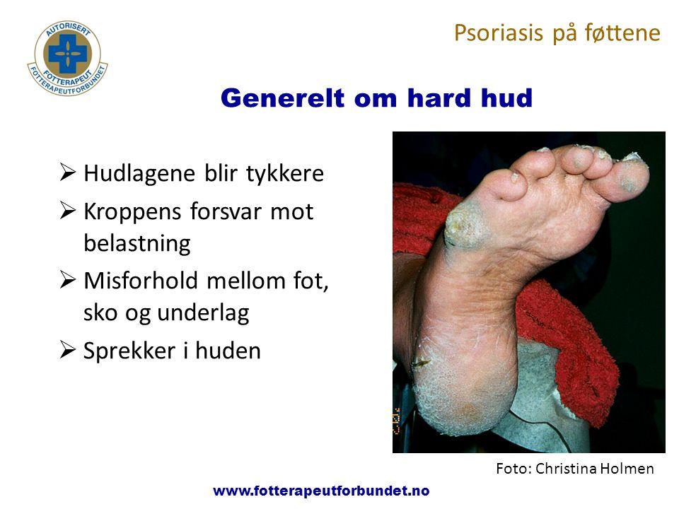 www.fotterapeutene.no  Hudlagene blir tykkere  Kroppens forsvar mot belastning  Misforhold mellom fot, sko og underlag  Sprekker i huden Generelt