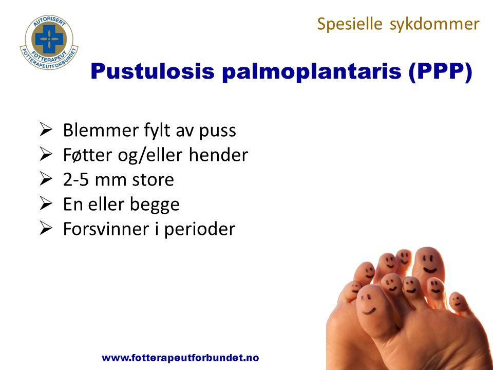 www.fotterapeutene.no Pustulosis palmoplantaris (PPP)  Blemmer fylt av puss  Føtter og/eller hender  2-5 mm store  En eller begge  Forsvinner i p