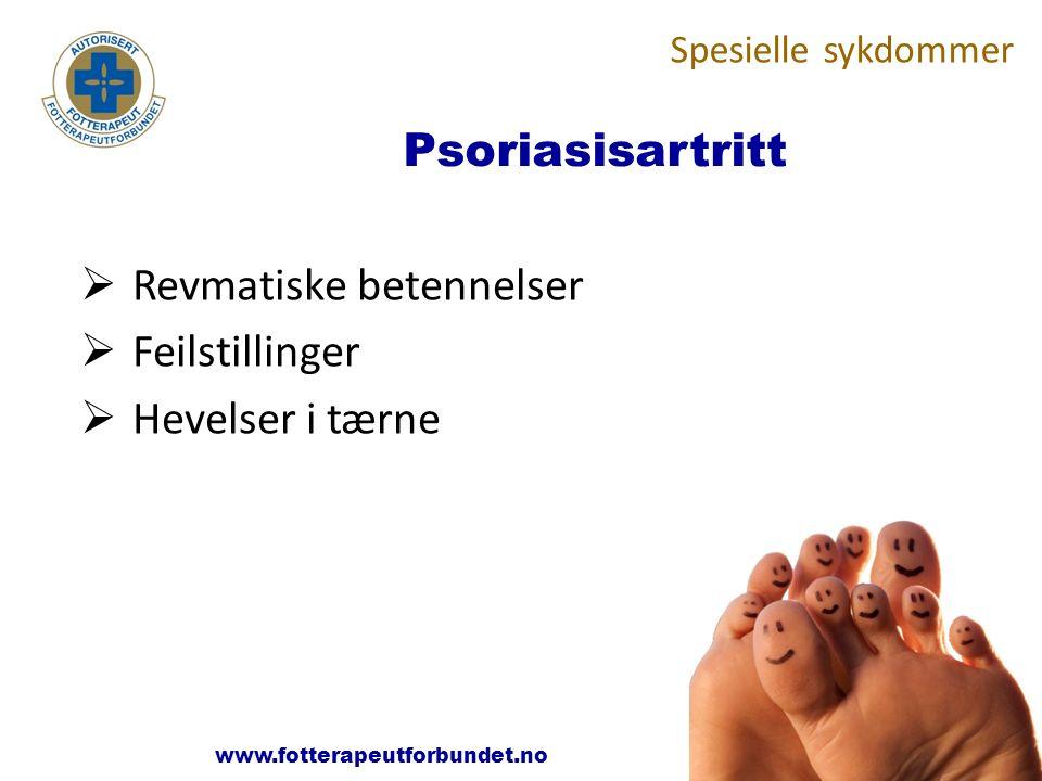 www.fotterapeutene.no Psoriasisartritt  Revmatiske betennelser  Feilstillinger  Hevelser i tærne Spesielle sykdommer www.fotterapeutforbundet.no