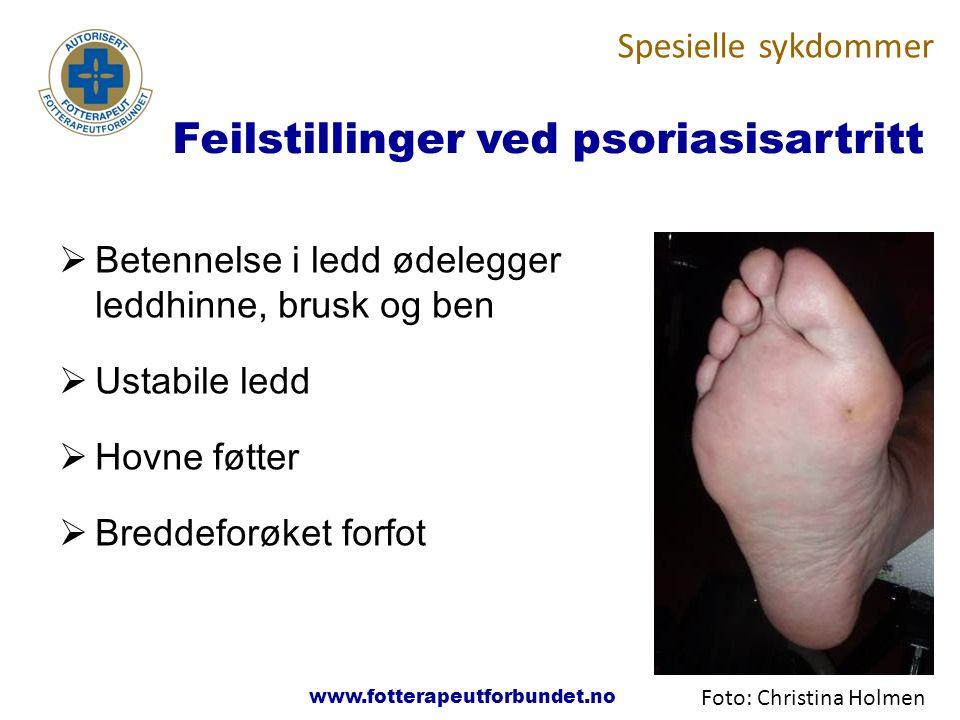 www.fotterapeutene.no  Betennelse i ledd ødelegger leddhinne, brusk og ben  Ustabile ledd  Hovne føtter  Breddeforøket forfot Spesielle sykdommer