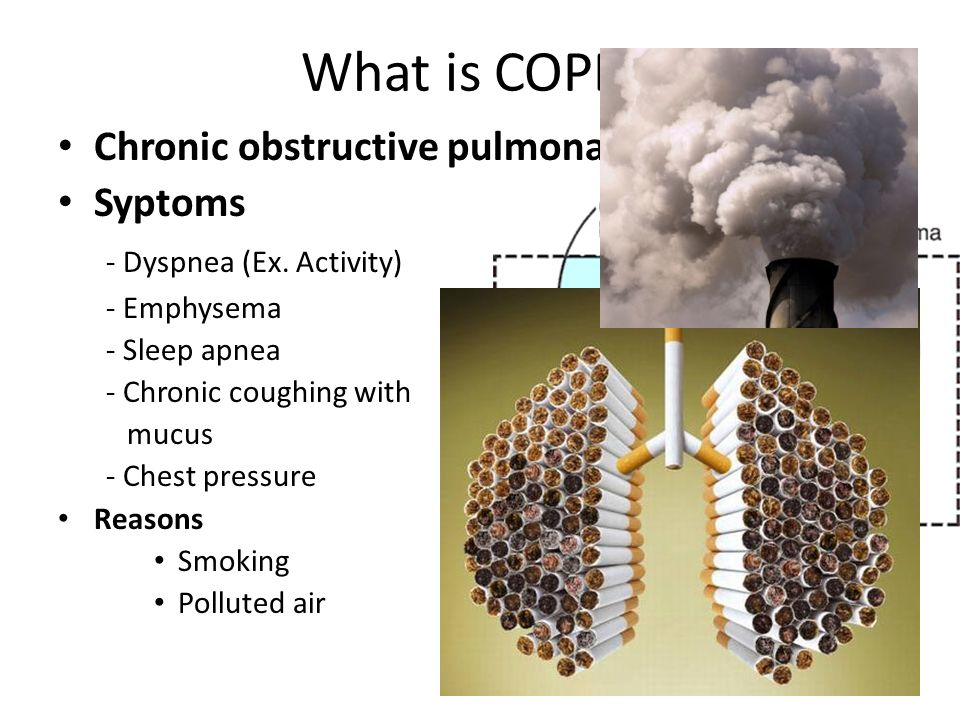 Diagnosis Spirometry and other tests COPD vs Asthma