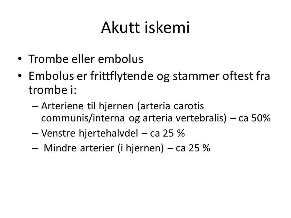 Akutt iskemi Trombe eller embolus Embolus er frittflytende og stammer oftest fra trombe i: – Arteriene til hjernen (arteria carotis communis/interna o