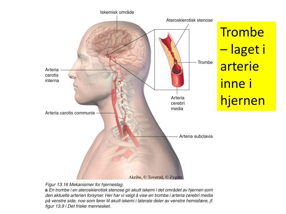 Trombe – laget i arterie inne i hjernen