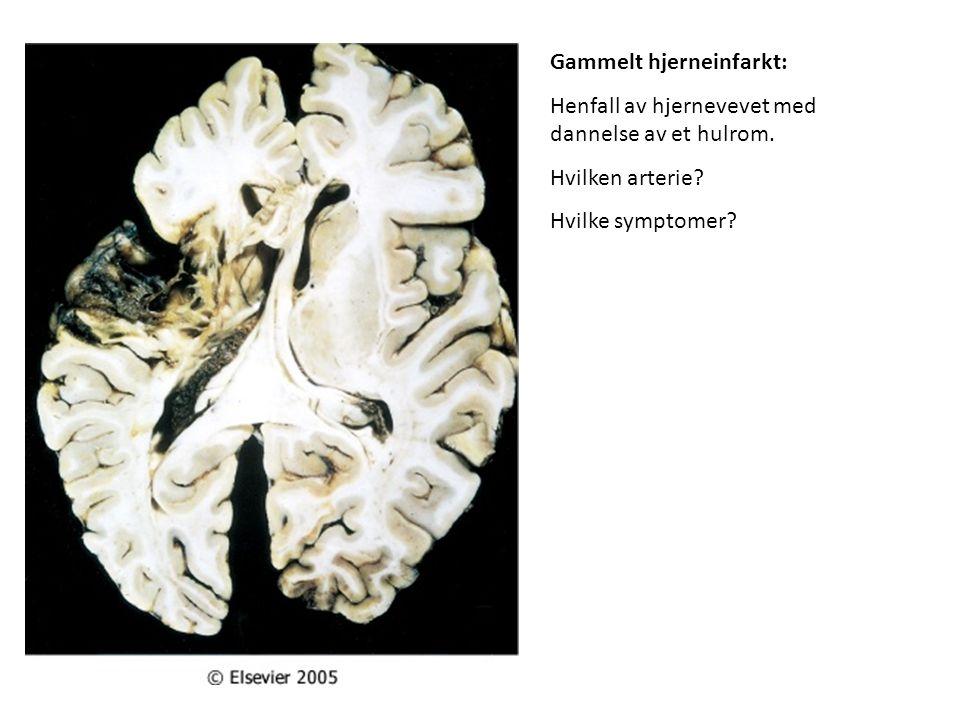 Gammelt hjerneinfarkt: Henfall av hjernevevet med dannelse av et hulrom. Hvilken arterie? Hvilke symptomer?
