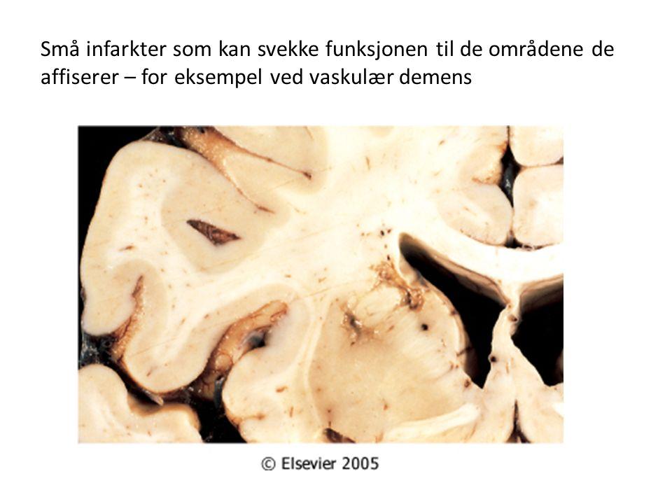 Små infarkter som kan svekke funksjonen til de områdene de affiserer – for eksempel ved vaskulær demens