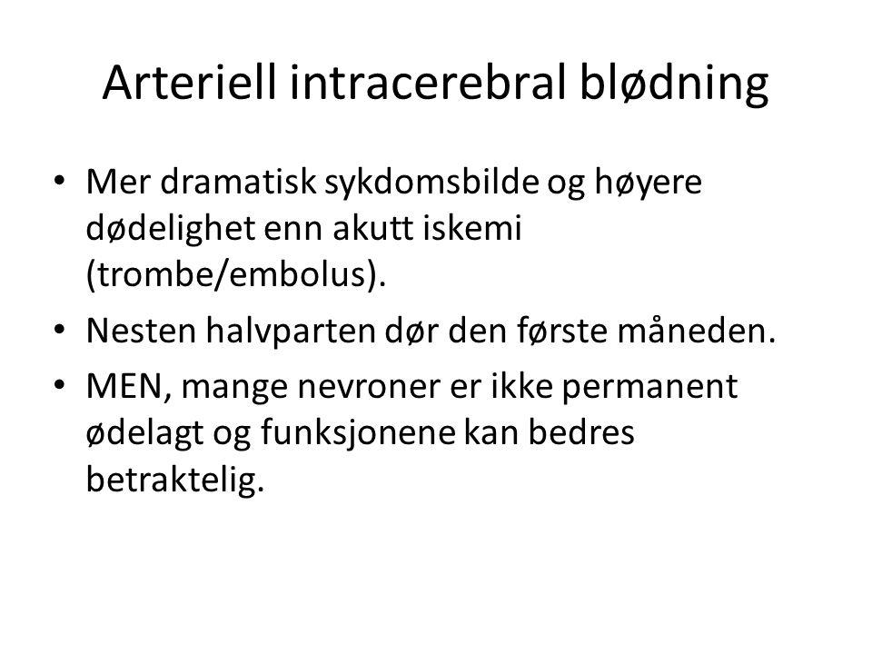Arteriell intracerebral blødning Mer dramatisk sykdomsbilde og høyere dødelighet enn akutt iskemi (trombe/embolus). Nesten halvparten dør den første m