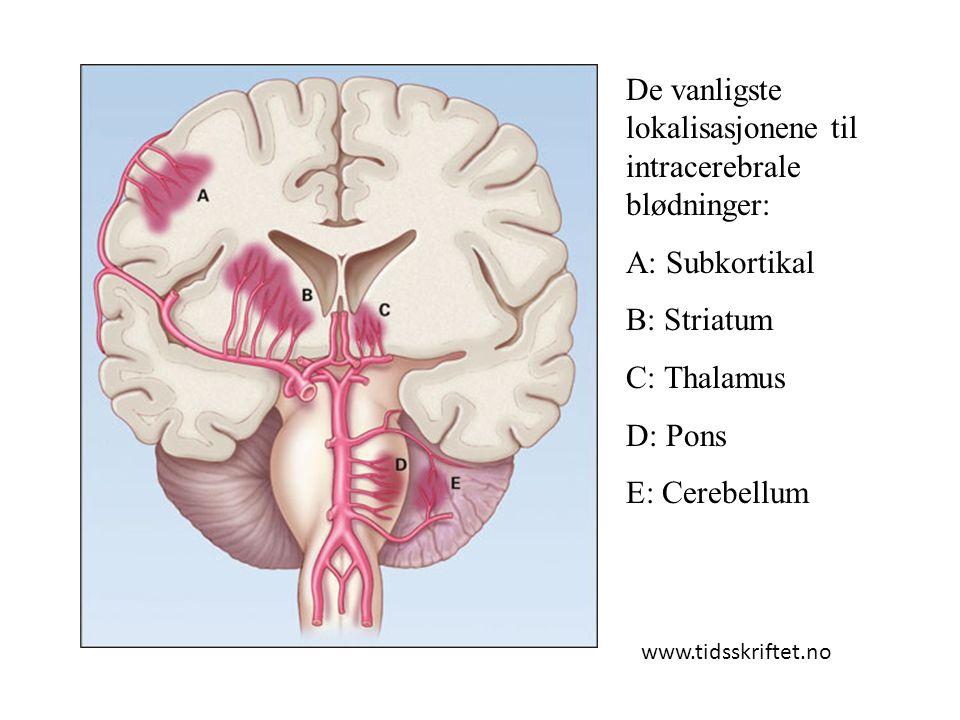 De vanligste lokalisasjonene til intracerebrale blødninger: A: Subkortikal B: Striatum C: Thalamus D: Pons E: Cerebellum www.tidsskriftet.no